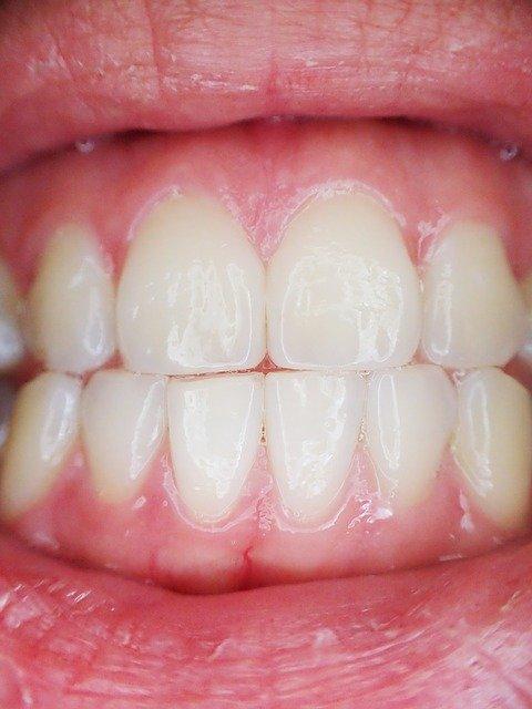dlesni