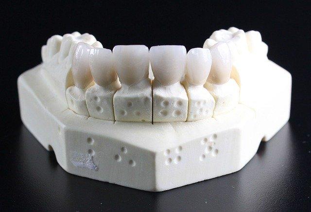 zobna-prevleka-naraven-izgled